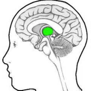 Alcohol En Het Brein Blijvende Stoornissen Door Alcoholmisbruik